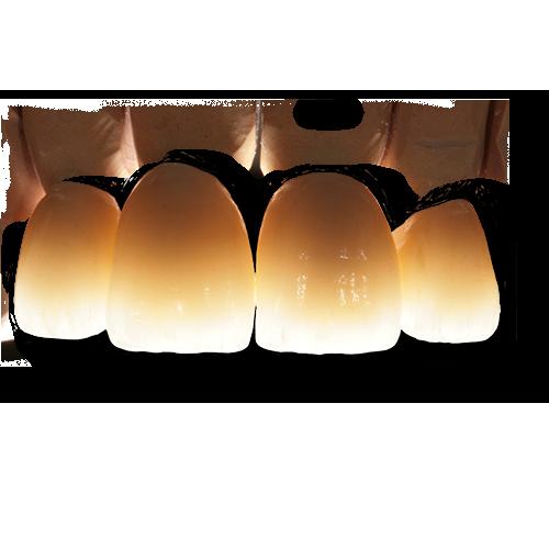 Zahntechnik Wiedmann Zahnlabor Zahnersatz Dentallabor Dentaltechnik Steinheim